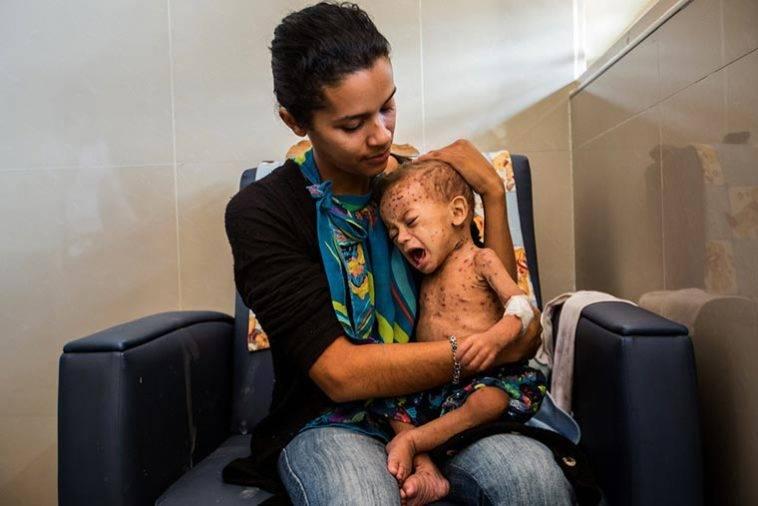 Desnutricion-infantil-venezuela-758x506.jpg