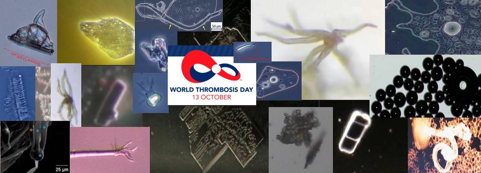 https://www.burbuja.info/inmobiliaria/attachments/vacunas-imagenes-laboratorio-microscopio-optico-recop-jpg.806222/